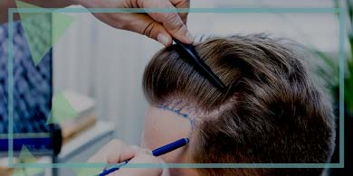 What will the future of hair transplantation be?