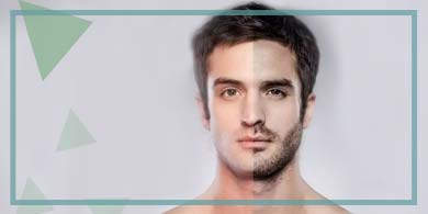 What is a Beard Transplant, How is it Performed?