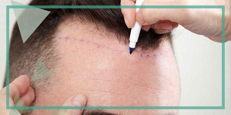Wat is een ongeschoren haartransplantatie?
