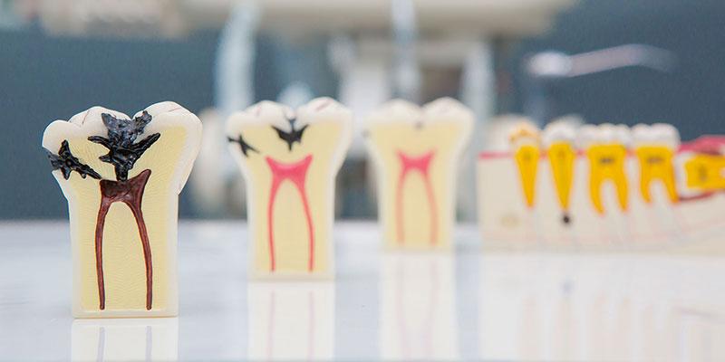 Endodonty