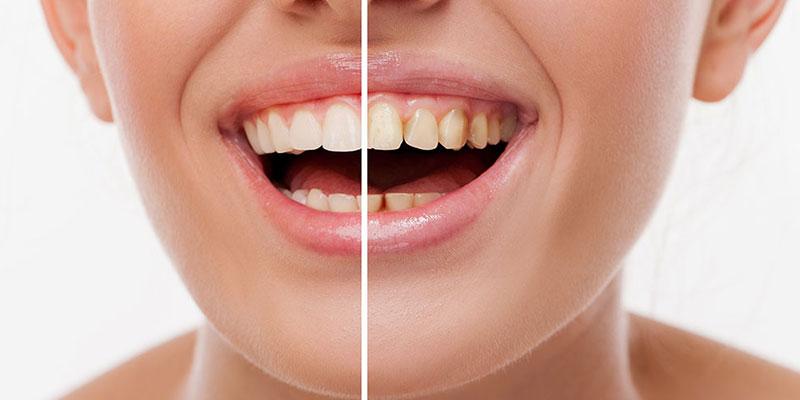 Aesthetic and Restorative Dental Treatments