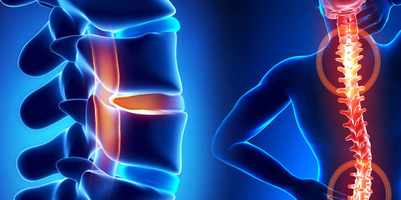 Spine Surgery Center