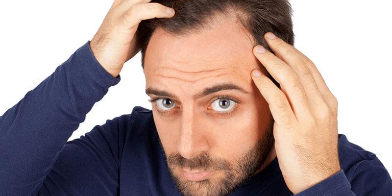 TDF Method Hair Transplantation